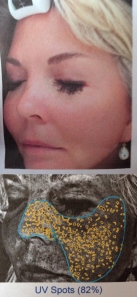 "Images from my Visia Skin Analysis. Add to that, a big fat ""thank you"" to my 80's tanning bed habit."